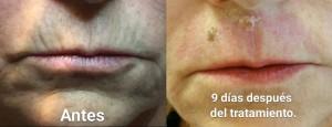 Tratamiento-Plexr-arrugas-labios